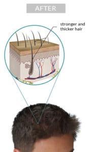 Laser hair growth